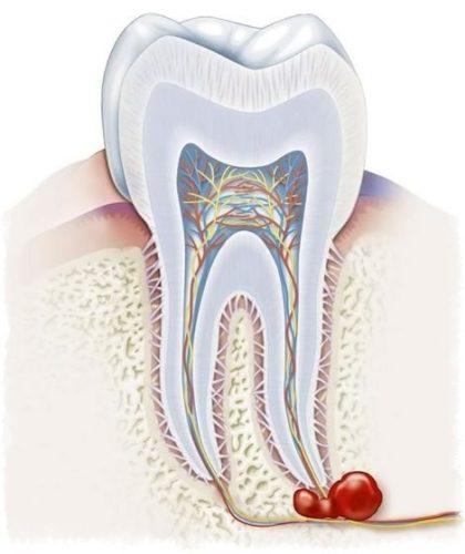 Проросший в кисту корень зуба