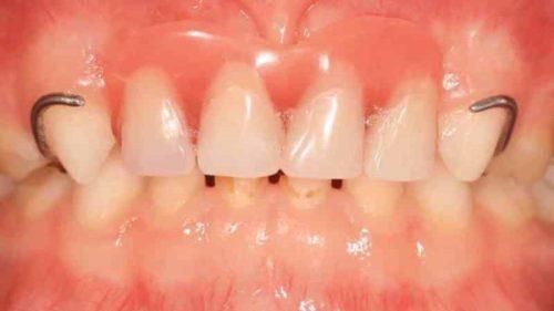 Коронки как способ реставрации молочных зубов