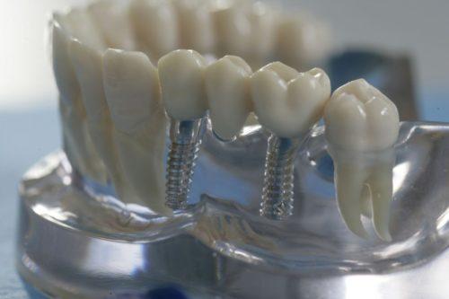 Использование импланта для протезирования и установки моствидного протеза