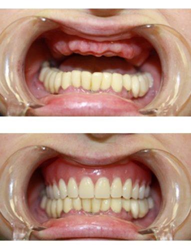 Вид челюсти до и после установки нейлонового протеза