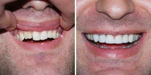 Качественное протезирование передних зубов решает функциональные и эстетические проблемы