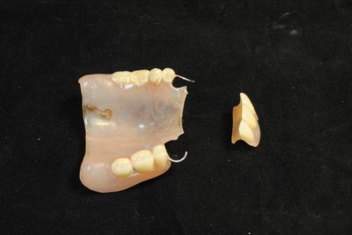 Часть протеза может отколоться в результате падения на твердую поверхность.