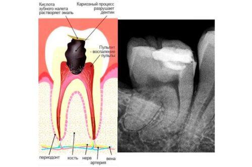 Хронический пульпит на рентгеновском снимке