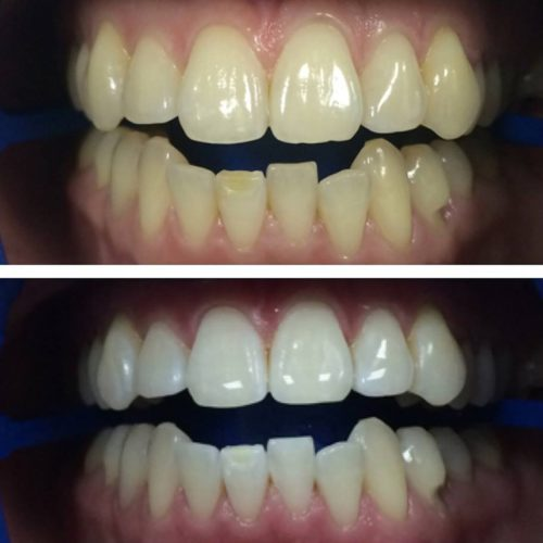 Способ отбеливания стоматолог выбирает на основании состояния эмали