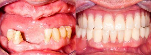 Съемное протезирование: фото до и после установки протеза