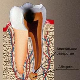 Нагноение при периодонтите заполняет полость корня и образует очаг у верхушки корня