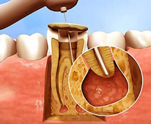 Воспалительный процесс периодонта локализуется в области верхушки корня