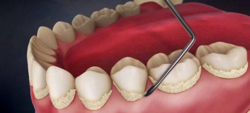Для удаления зубного камня существуют ультразвук, лазер и пескоструйный метод