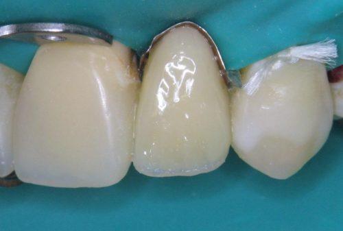 Установка зубного протеза на стекловолоконной балке