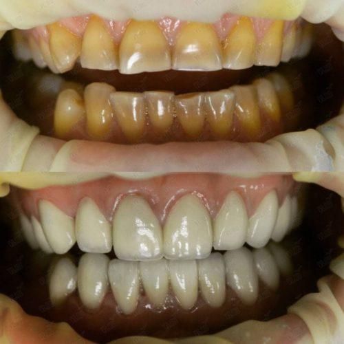 Устранение эстетических дефектов зубов винирами