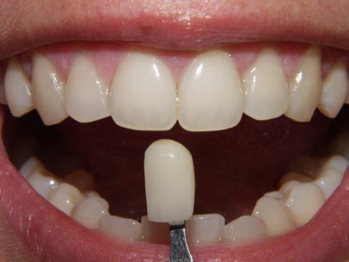 Виниры — способ восстановить и укрепить зубы