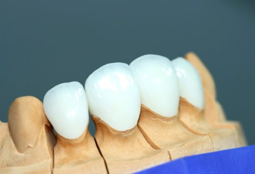 Внешне виниры неотличимы от натуральной зубной эмали