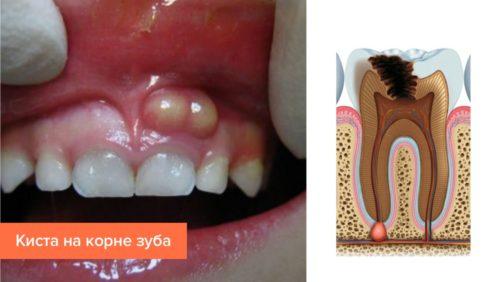Визуальное проявление кисты на корне зуба