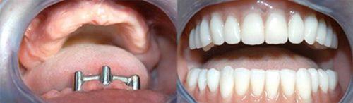 Восстановление зубного ряда при полном отсутствии зубов