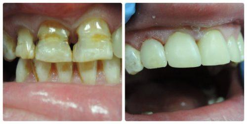 Зубы до и после реставрации в рассрочку