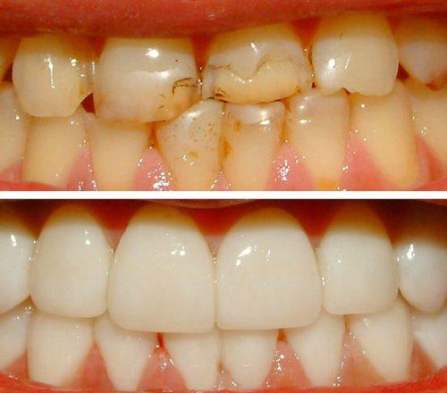 Установка керамических виниров фото до и после
