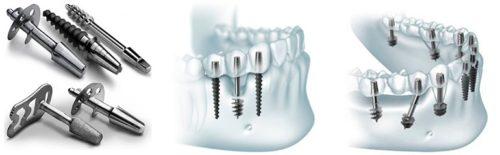 Базальная имплантация проводится при дефиците губчатого слоя кости