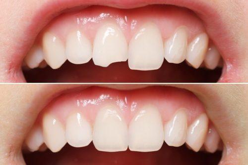 Восстановить скол можно посредством эстетической реставрации зубов