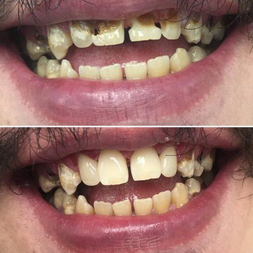 Восстановленные зубы выглядят как настоящие