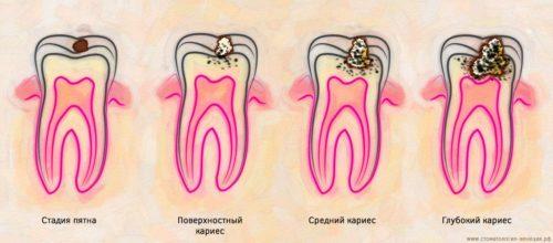 Кариес: развитие от пятна до разрушения зуба