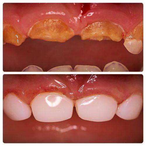 Глубокий кариес: фото до и после лечения