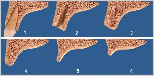 Со временем объем кости челюсти уменьшается