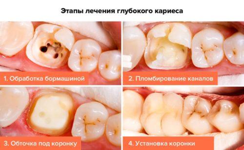 Кариес зубов: пломбирование и установка коронки