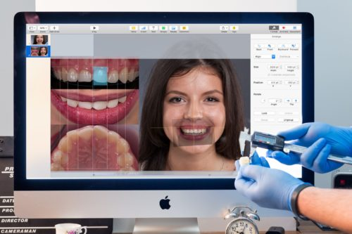 Программу по моделированию улыбки применяют в ортодонтии, хирургии, эстетической реставрации