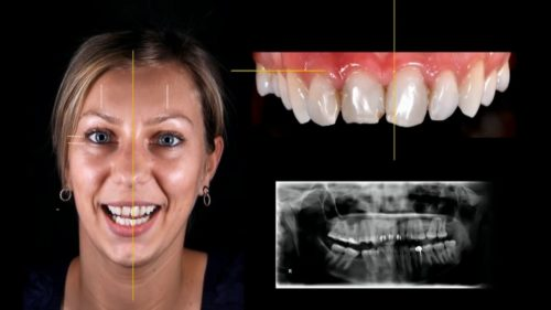Моделирование улыбки осуществляют посредством снимков и компьютерной программы