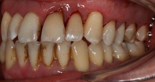 Без профессиональной чистки налет и зубной камень приводят к утрате фиксирующей способности десны
