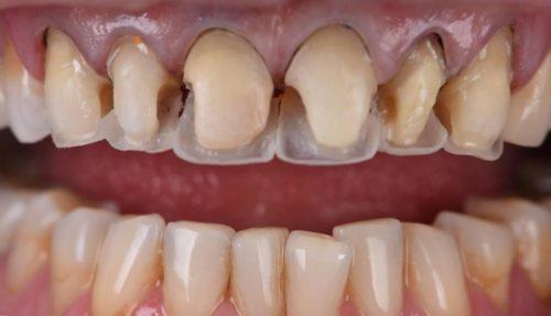 Использование композитов позволяет воссоздать дентин и эмаль при наращивании передних зубов