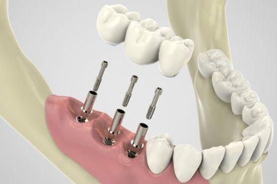 Стержень и коронка — конструкция несъемного протеза зуба