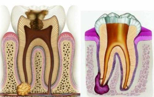 Новообразование на зубном корне необходимо удалять