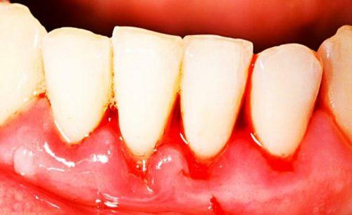 Наиболее распространённая форма гингивита – катаральная, до 97% случаев