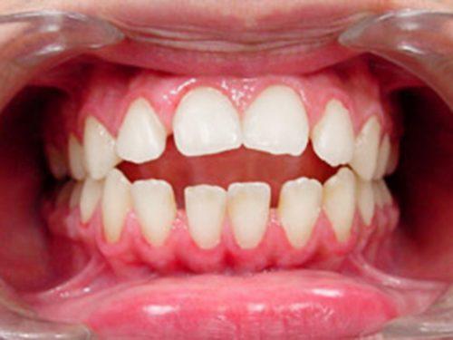 При открытом прикусе зубы не смыкаются