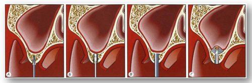 Восстановление объема кости открытым и закрытым методом