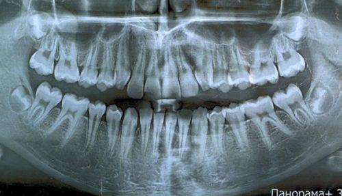 панорамном снимке отслеживается состояние всех тканей и новообразования