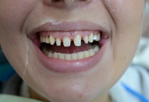Врач стачивает эмаль, чтобы после посадки пластин зубной ряд выглядел естественно
