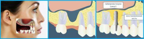 Дистрофия кости — показание к проведению синус-лифтинга