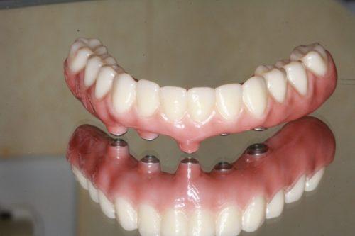 Полное протезирование на имплантах: съемные конструкции