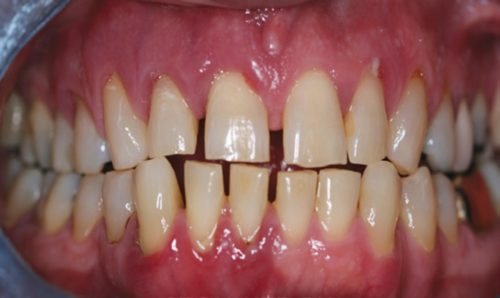 При пародонтите зубы расшатываются, оголяются корни, исчезают межзубные перегородки