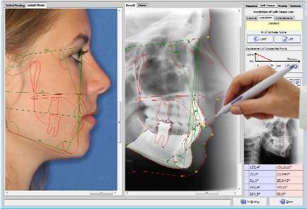 ТРГ в ортодонтии позволяет получить представление о строении зубочелюстной системы и мягких тканей