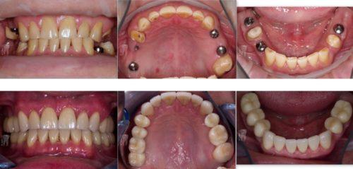 Восстановление зубов: фото до и после установки имплантов