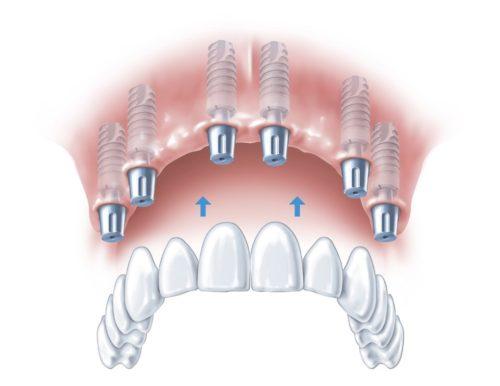 Зубное протезирование на имплантах all-on-6