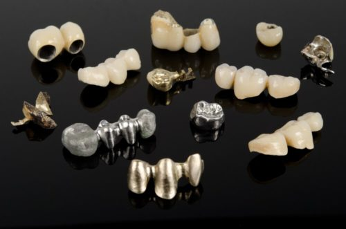 Коронки могут изготавливаться из металла, диоксида циркония, керамики