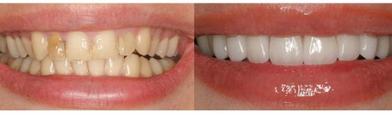 Фото передних зубов до и после реставрации коронками