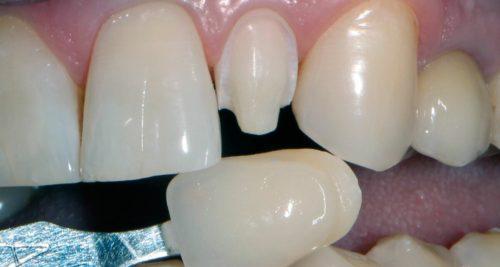 Виниры: способ непрямого восстановления передних зубов