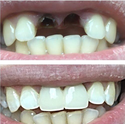 Зубы до и после эстетической реставрации