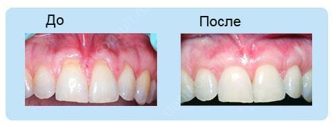 Фото зубов и десен до и после лечения воспаления