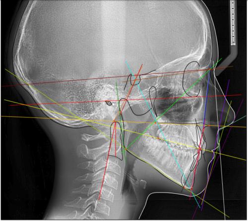 Снимок ТРГ боковой проекции расшифровывается для передачи ортодонту